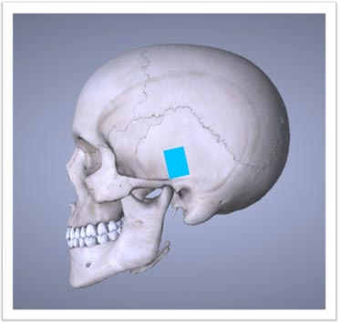 The middle cranial fossa (MCF) approach.