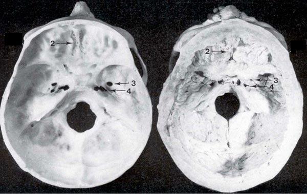 sclerosteosis