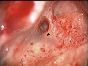 Meningitis causing blocked cochlea