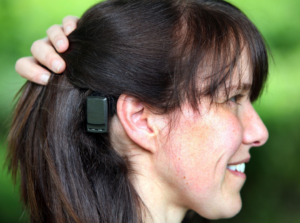 BAHA attract for single sided deafness