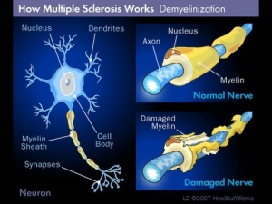 Multiple sclerosis and demyelinization