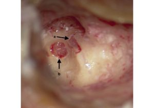 A primary inner ear schwannoma