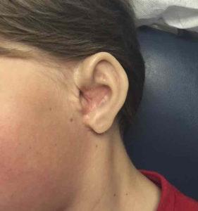 auricular prosthesis