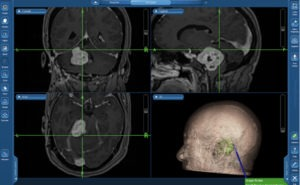 Surgical navigation for vestibular schwannoma surgery