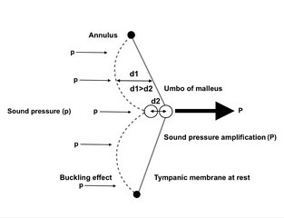 The catenary (buckling) effect of the tympanic membrane. The displacement (d1) due to the buckling of the tympanic membrane is greater than the displacement (d2) near the centre where the tympanic membrane is fixed to the malleus. This input sound pressure (p) is consequently amplified by a factor of 2(P).