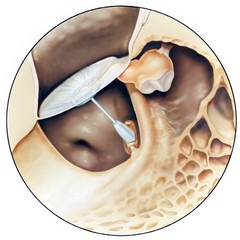 A total ossicular replacement prosthesis (TORP) made of titanium. Courtesy: Spiggle & Theis.