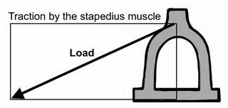 Fig. 14a. Asymmetric stapes design.